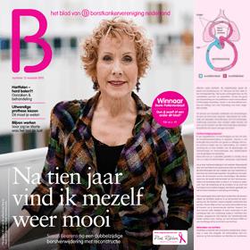 Hartfalen na borstkankerbehandeling – B - BVN - Janine Bruinooge